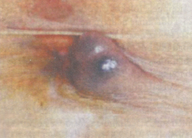 Тромбированный наружный геморроидальный узел в виде плотного образования округлой формы, синюшнего цвета