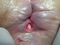 Наружный геморрой и острая задняя анальная трещина