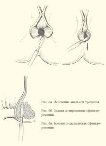 Иссечение трещины с измененными краями и дозированная сфинктеротомия