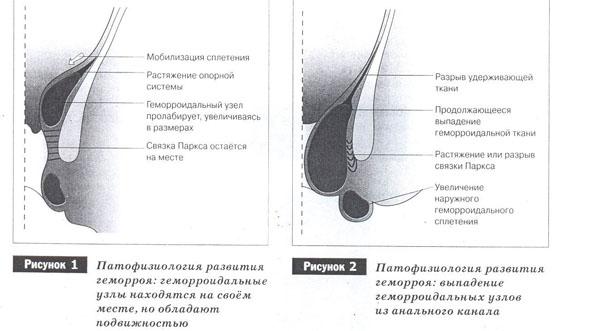 Механическая теория развития геморроя