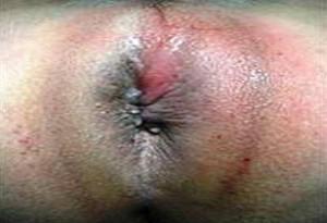 Рис. 4. Острый ишеоректальный парапроктит.