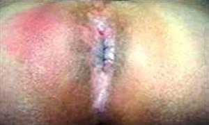 Рис. 6. Острый подковообразный (задний) парапроктит.