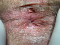 Рис. 4. Вид перианальной кожи через 4 недели после операции.